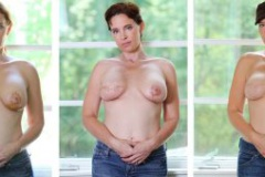 Progression of Mastectomy Progress