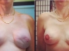 Before and After Nipple Tattoos