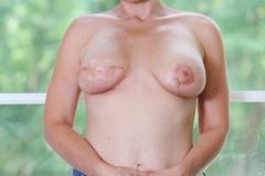 Month One Post Mastectomy
